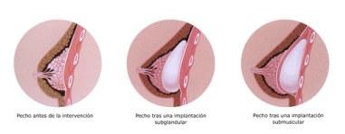 instituto-de-medicina-y-cirugia-estetica-aran-y-hernandez-intervencion-aumento-mamas