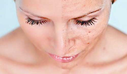 eliminar-manchas-de-la-piel-con-crema-despigmentante